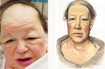 مرض الميكسوديما نقص الثيروكسين الدرقية