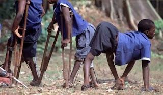 Imagine cu copii suferind de Poliomielita