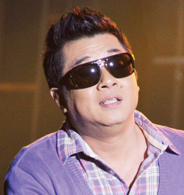 Randy Santiago Revealed The Real Story Behind His Damaged Eye!