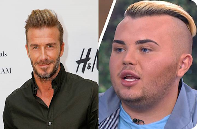 Video Man spends $26,000 on surgery to look like David Beckham