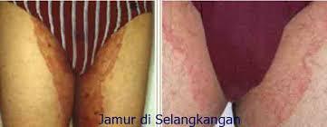 Penyakit Gatal-gatal dan Lecet Pada Selangkangan