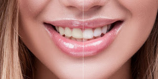The limits Of Tooth Whitening