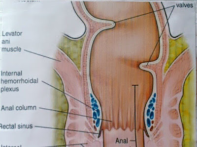 Gambar Wasir (Hemoroid) - Gejala, Tanda Dan Penyebab Hemoroid Atau Wasir