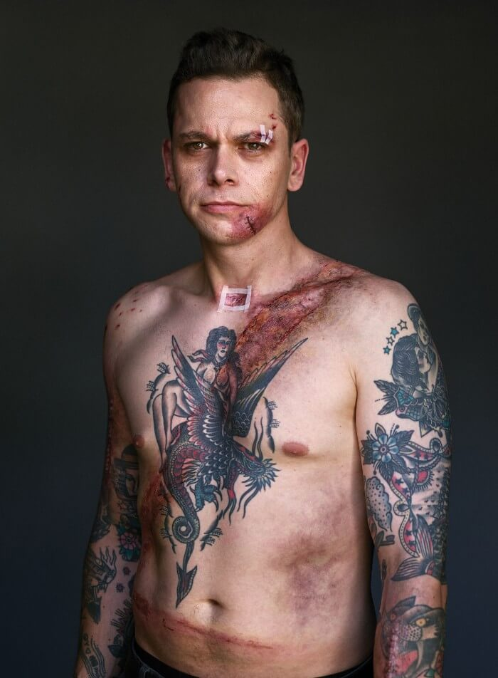 10 Powerful Pictures Of Car Crash Survivors Who Want To Raise Awareness About Seatbelt Safety