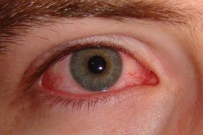 Vigamox điều trị hiệu quả viêm kết mạc (đau mắt đỏ)