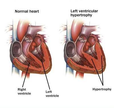 Left Ventricular Hypertrophy found in Hipertensive Heart Disease