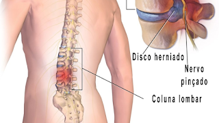 Tipos de Hérnia de Disco Lombar