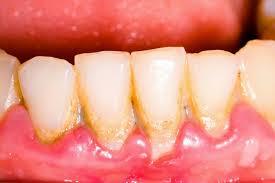 Cara Menghilangkan Karang Gigi Dengan Cepat dan Mudah