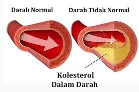 Cara Mengendalikan Kadar Kolesterol