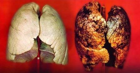 Pulmão com câncer