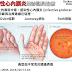 報告用大圖 感染性心內膜炎的診斷與治療 (Diagnosis AND Management of Infective Endocarditis)