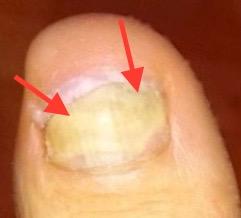 Nagel löst sich seitlich vom Nagelbett Fußnagelpilz Jenn Cosmetic.