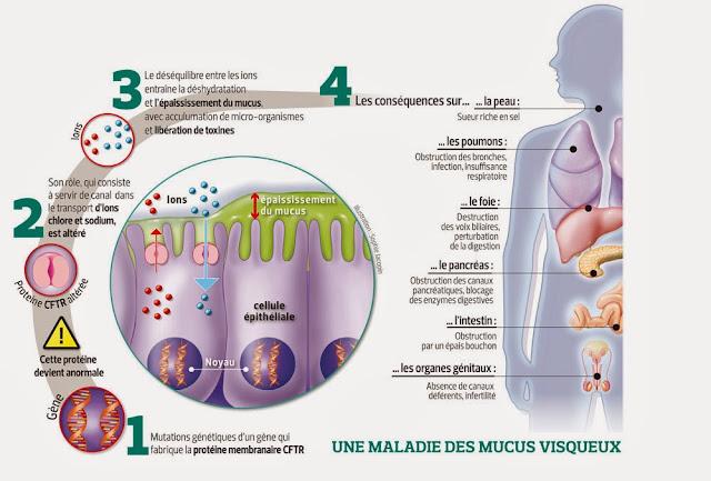 mucoviscidose physiopathologie infirmier
