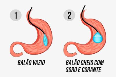 ilustração que demonstra o volume do balão intragástrico cheio e vazio no estômago