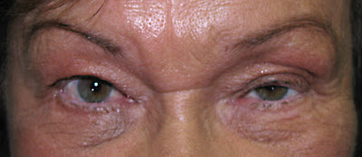 Ptose palpebral em idoso após uso de toxina botulínica (Botox)