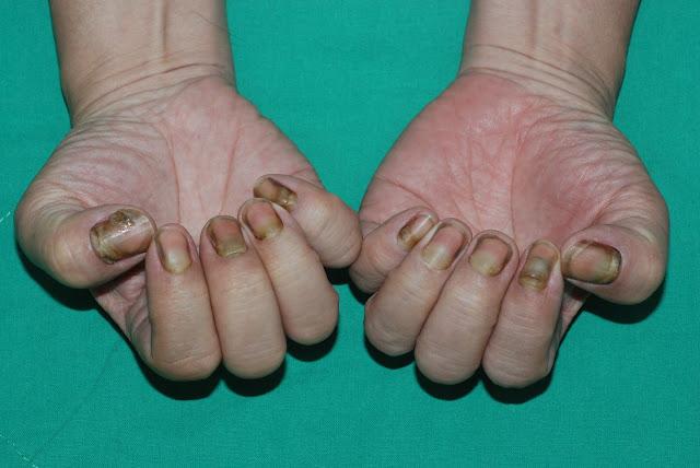 為什麼我的指甲長那麼慢?--找出影響指甲生長速度的疾病 | 鄭煜彬的皮膚科學研究室