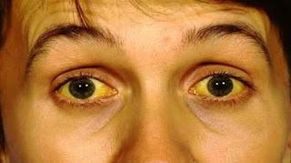 6 Fakta Tentang Hepatitis A Yang Wajib Kamu Ketahui