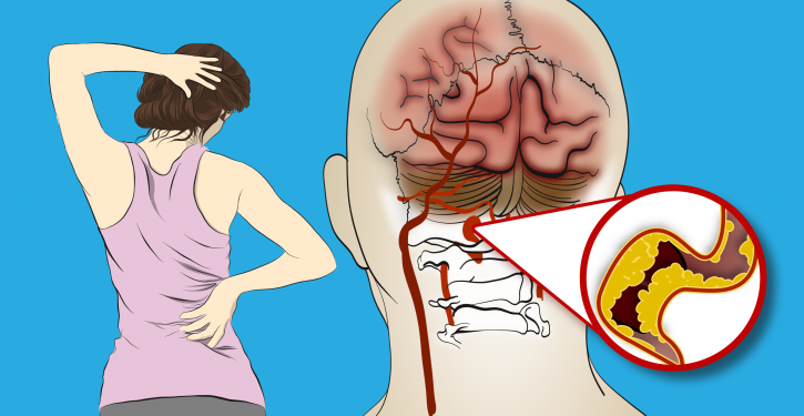 Doctors Ask Women To Pay Attention To These 6 Symptoms Of Stroke