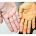 Giải pháp nào cho người da khô?