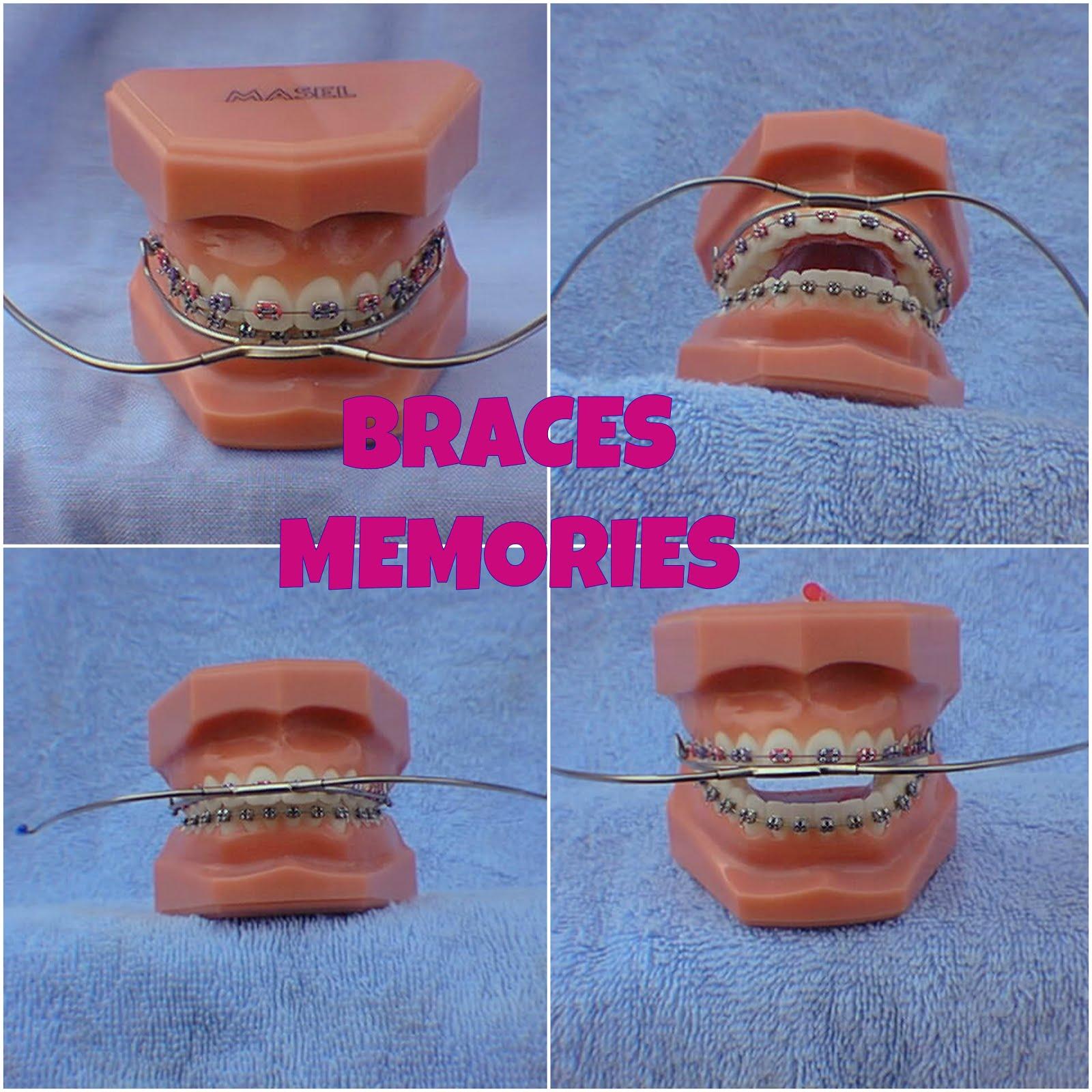 Braces Memories: Mouthwear Stories: Finishing The Treatment