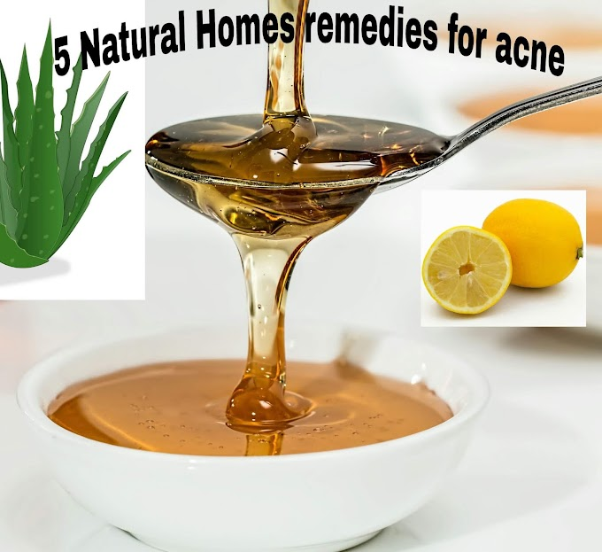 How to get rid of acne naturally at home