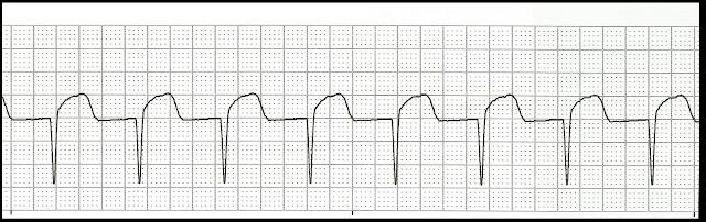 Float Nurse EKG Rhythm Strip Quiz 98 Junctional rhythms