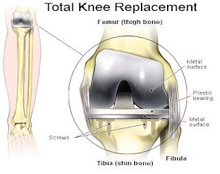 total knee replacement surgery coimbatore