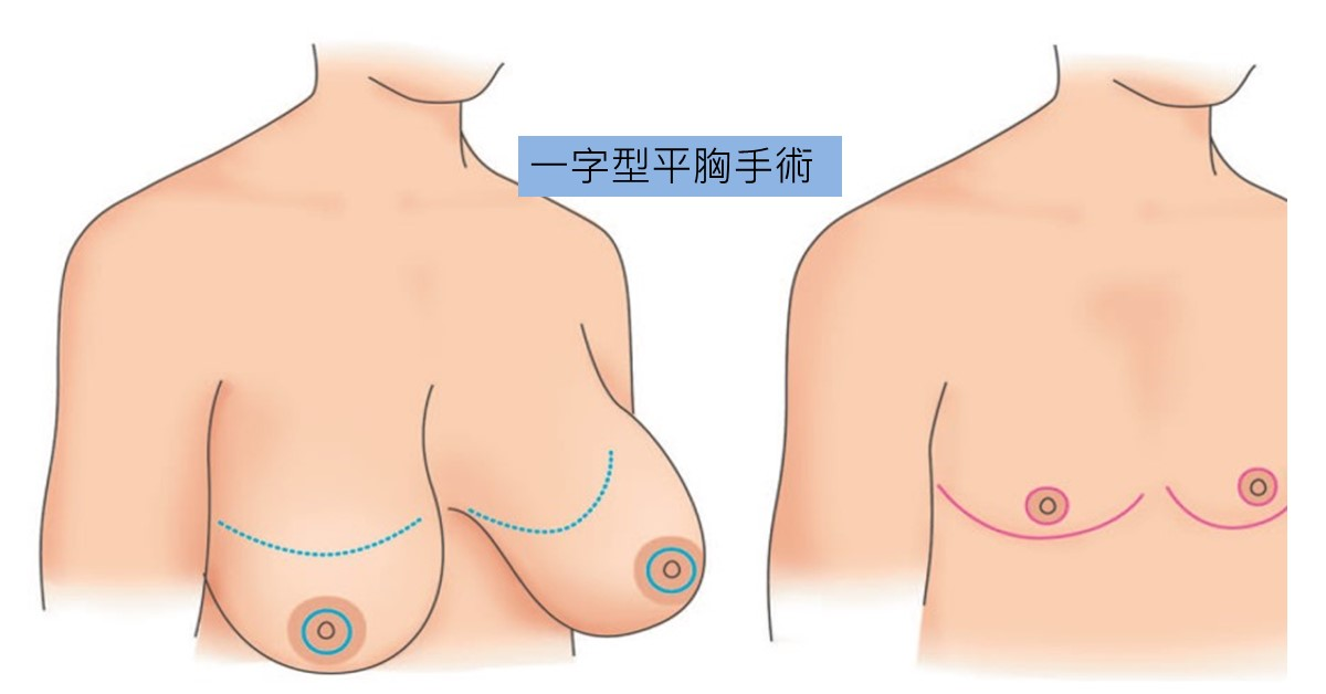 一字型平胸手術手術的做法是將原本的乳房切除,將乳頭及乳暈以移植的方式移到理想的位置,可同時縮小乳頭及乳暈。