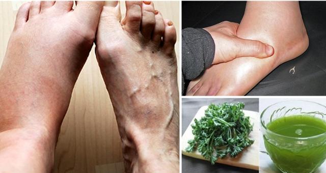 remediu natural impotriva umflaturii gleznelor si picioarelor