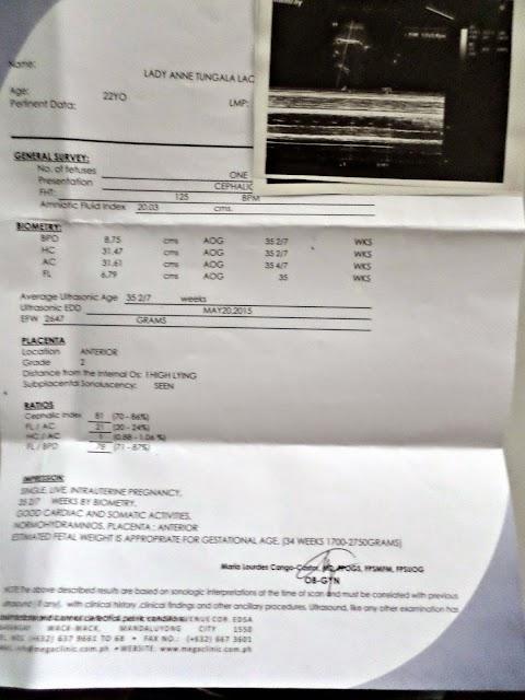 My 4th Ultrasound