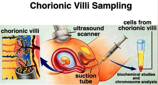 My Family Medicine Practice  Chorionic Villus Sampling