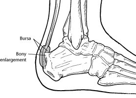 Pain In Back Heel Of Foot