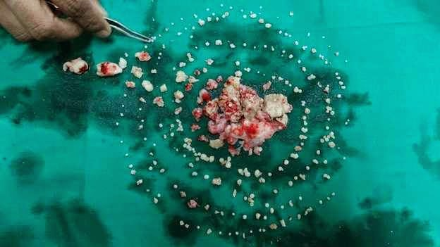Doctors in India have extracted 232 teeth from the mouth of a 17 year old. The surgery lasted for seven hours. Ashik Gavai was brought in with a swelling in his right jaw, Dr Sunanda Dhiwa 411vibes