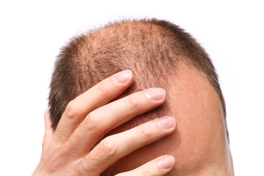 hair loss bald man stress - de-stress your hair - Novuahair