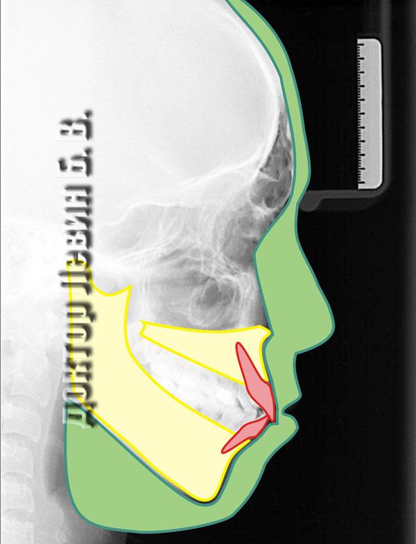 На телерентгенограмме пациента обозначены анатомические образования (челюстные кости и зубы) которые определяют форму мягких тканей лица