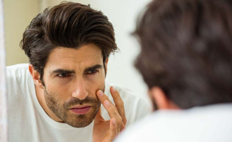 Acne, Grooming, pimples, skincare, style