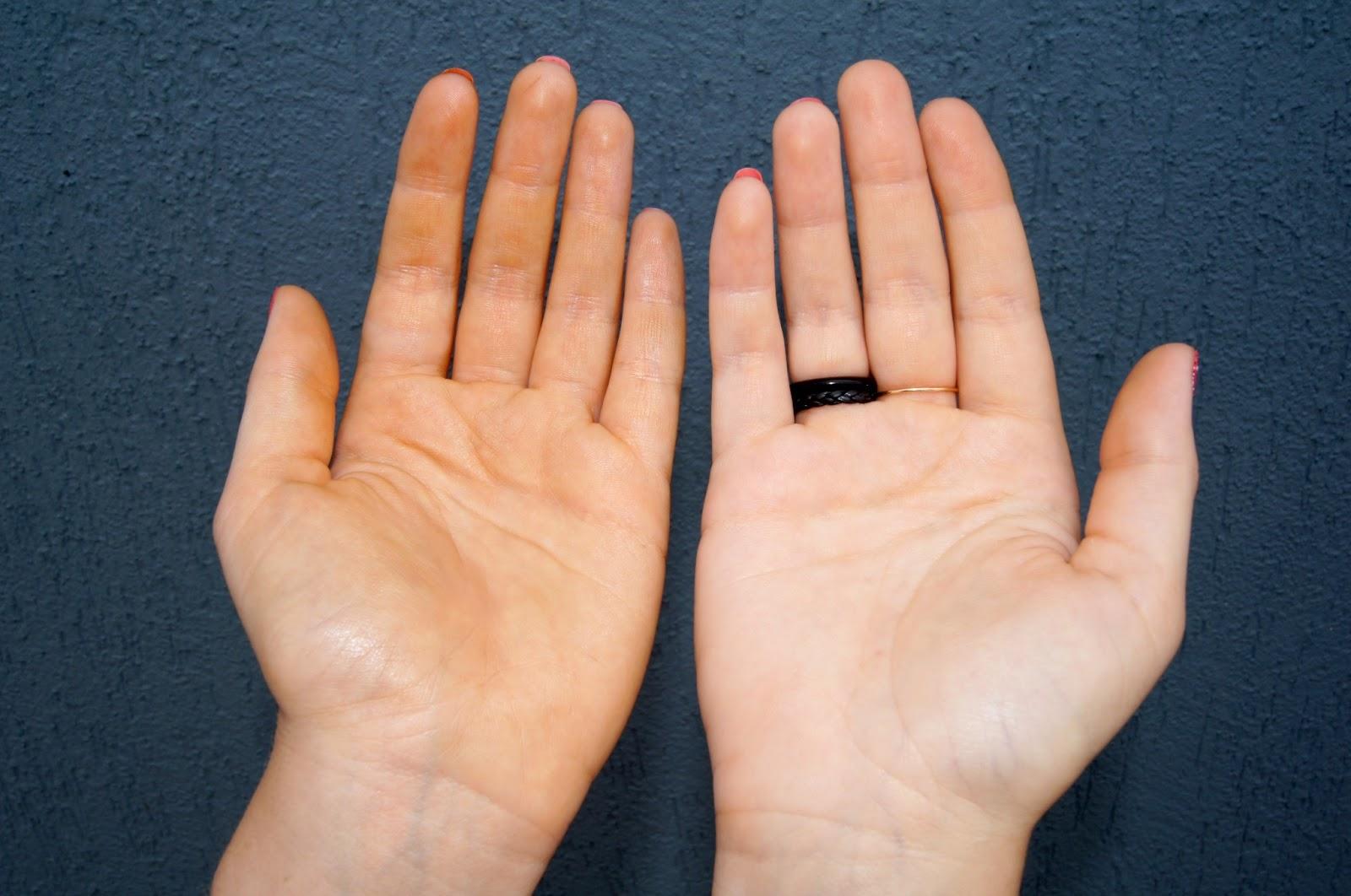 apparition de taches oranges sur les mains