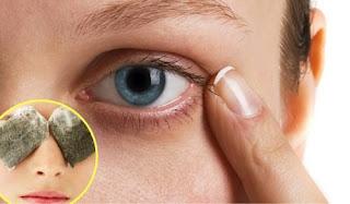 Comment éliminer les cernes sous les yeux avec des remèdes maison