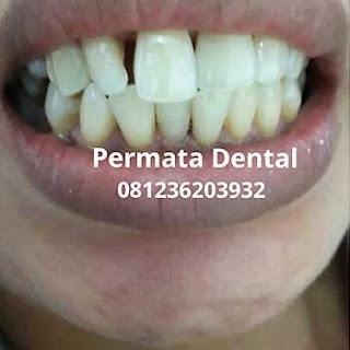 gambar foto gigi renggang jarang tonggos