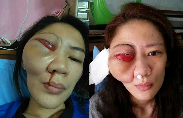 GRAPHIC PICS OF YOUNG WOMAN'S EYE POPPING OUT OF HER HEAD DUE TO MASSIVE UNTREATED TUMOUR