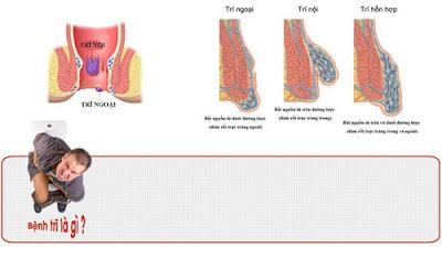 Phòng tránh trĩ ngoại do tắc mạch máu
