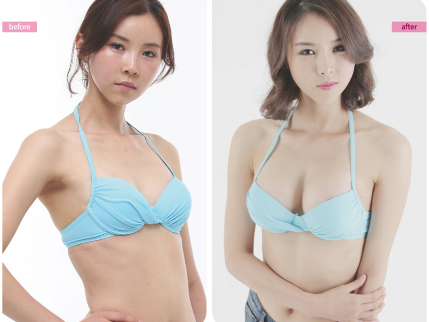 Breast Enlargement Surgery Aa To C 45