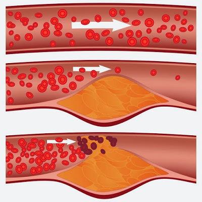 Jika Pembuluh Darah Anda Tersumbat, Makanlah Ini Dijamin Aliran Darah Anda Langsung Lancar!! Ini Penjelasannya...