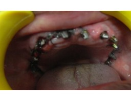 Immediate Dental Implants in 3 days in India