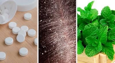 5 remedios caseros para tratar la caspa
