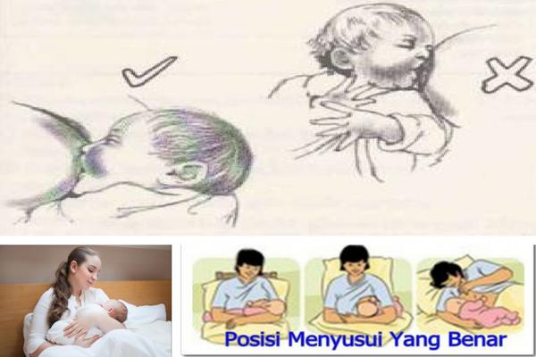 3 Kesalahan Umum Saat Menyusui yang Membuat Bayi Tersedak. Hindari Moms