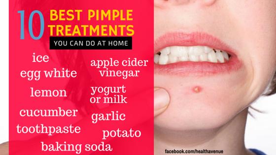 best pimple treatments