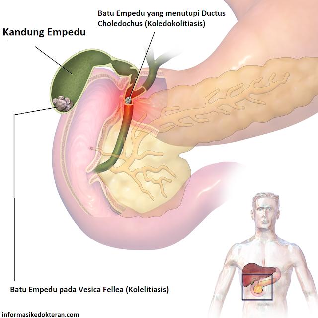 Gambaran batu empedu (kolelitiasis) pada kandung empedu dan saluran empedu, Cholelithiasis, gallstone, vesica fellea, CBD, duktus koledokus, ductus choleodchus, pancreas, koledokolitiasis, pankreas, Choledocholithiasis