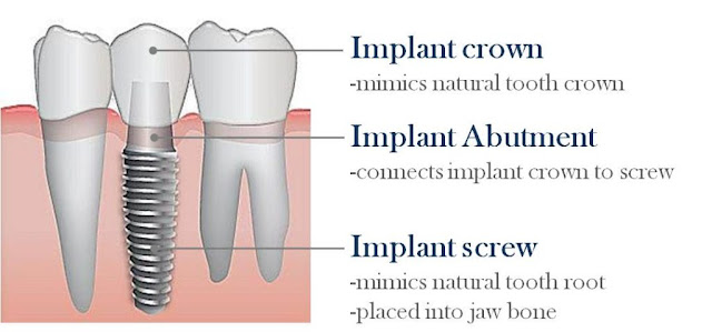parts-dental-implant