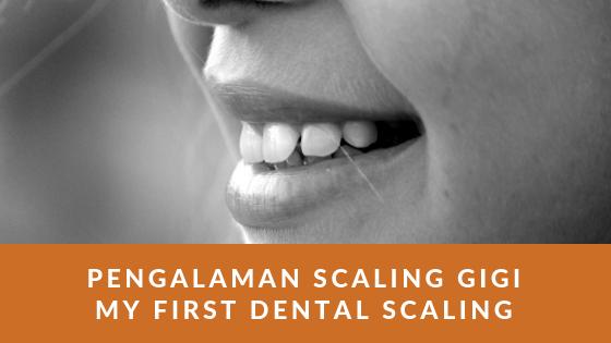 Pengalaman Scaling Gigi